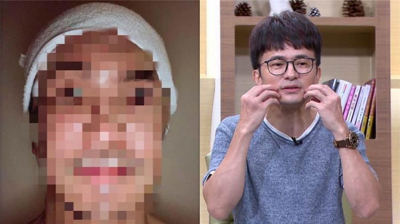 唐從聖曾在臉書曝光腫臉照,似乎因影響容貌太多而打上馬賽克不願見光。(圖/年代提供、翻攝自臉書)