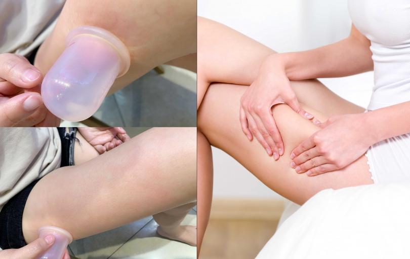 要記得在按摩時要讓按摩杯呈現中空狀態吸附在肌膚表面,就能完美仿造專家的揉捏手技。(圖/吳雅鈴攝影、品牌提供)
