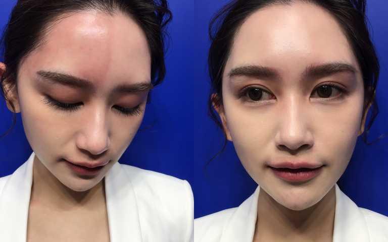 起酒疹的左半邊臉遮瑕完後,左右邊臉完美無缺,完全看不出有酒疹的紅。(圖/黃筱婷攝影)