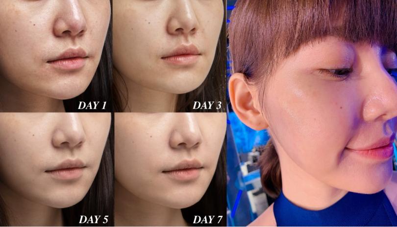 Model使用蘭蔻「超未來肌因賦活露」連續七天後,泛紅粗糙膚況真的完全不見了!(圖/蘭蔻提供)