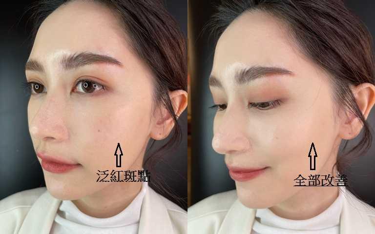 其實模特兒膚質已經很好,但卸妝之後才會發現鼻翼、臉頰還是有些泛紅斑點,如果沒用氣墊遮飾會通通跑出來>_<。(圖/吳雅鈴攝影)
